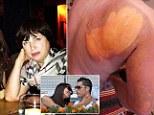 Mother of Ronaldo's supermodel girlfriend suffers horrific burns in Russian sauna