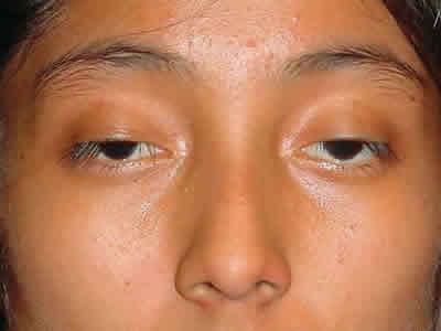 Eye Ptosis