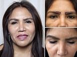 Elizabeth Cook had an eyebrow and eyelash transplant