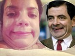 Lily Allen bears a striking resemblance to Mr Bean as she shares extremely unflattering selfie