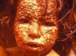 scientists fear that smallpox, which was eradicated in 1979, could re-emerge from the most unlikely of places ¿ defrosting corpses
