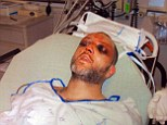 Black and blue: Inmate Kenneth Davis was severely beaten by guards at a Maryland correctional facility