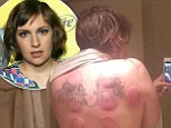 'Da cure!' Lena Dunham posts topless picture of her mottled back after trying out the ancient healing method of cupping