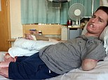 Alex Lewis, 34, initially thought he had a common cold but was rushed to hospital where he was diagnosed with a blood infection which developed into septicaemia and toxic shock syndrome. Doctors said he only had a three per cent chance of survival