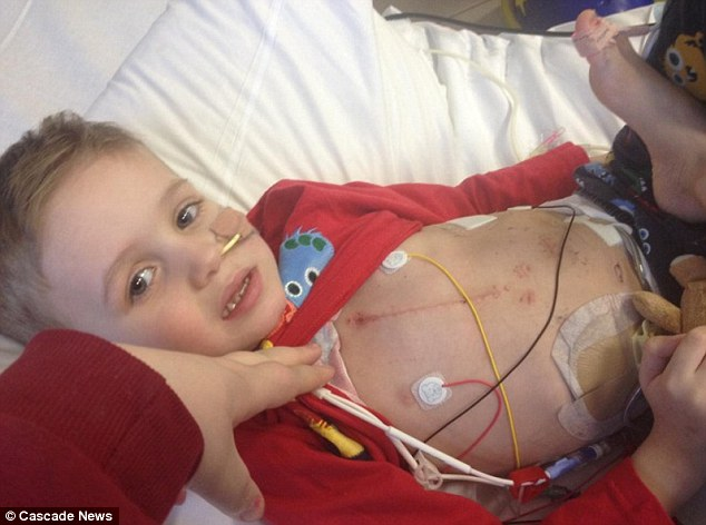 Fighting: Ashton Hutcheson, three, was fitted with the device to keep him alive until an organ becomes available for transplant