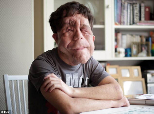 Against the odds: Mr Pearson, 26, suffers from the genetic disorder neurofibromatosis and first appeared on Beauty And The Beast: The Ugly Face Of Prejudice