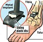 How a new ankle works: Ankle replacements involve removing the worn-out ends of bones, replacing them with metal caps, and inserting a sliding plastic disc in between to act as artificial cartilage (pictured above)
