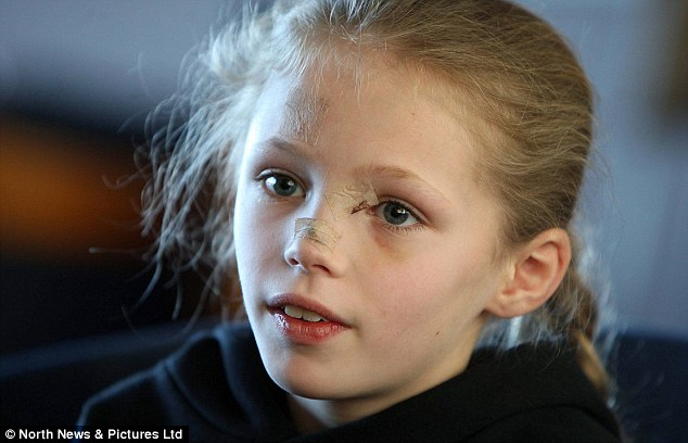 Recovery: Abbie was immediately rushed to hospital and needed surgery to remove pieces of glass from just below her left eye. Although the incident was traumatic, she is not permanently scarred