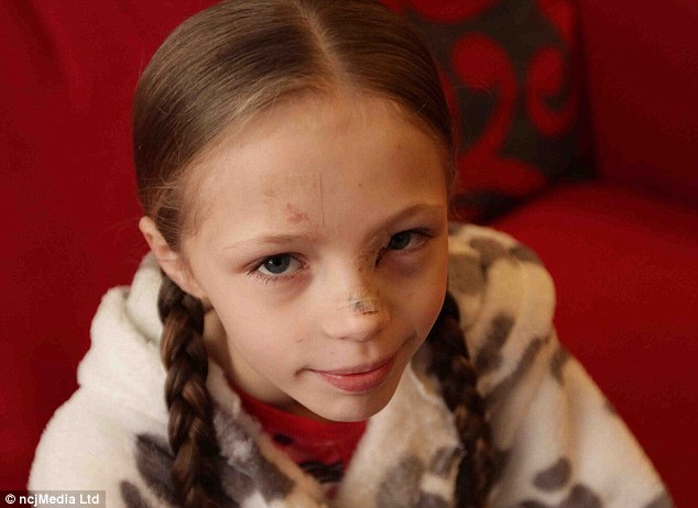 Fortunate: Abbie suffered cuts to her forehead, hands, nose and around her left eye. She was lucky not to lose her sight during the incident, and has managed to avoid being scarred for life