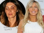 Brittny Gastineau's friend reveals 'scared' model wasn't going to report assault as 'devastated' mom Lisa says domestic abuse is 'like history repeating itself'