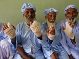 The Taliban warned people in Afghanistan to boycott the country's presidential election or face punishment, in Herat, these men had their index finger's amputated for ignoring the terror threat