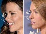 """Experts have analysed what makes an ideal nasal and found the tip needs to be slightly upturned - just like the one natural beauty Kate has. Other examples of a perfect nose are those sported by fellow Brit beauty Kate Beckinsale and American actress Jessica Biel.  In a study revealed today scientists found the angle of rotation at the nasal tip should be exactly at 106 degrees to enhance a woman's femininity.  Dr Omar Ahmed, from New York University, said: """"To our knowledge this is the first population-based study to attempt to simultaneously determine the ideal NTP - nasal tip projection - and rotation.  """"A rotation of 106 degrees was found to be the most aesthetic."""""""