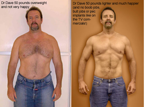 Dr. Dave Woynarowski, before and after weight loss