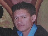 Amputee: Alazar Ortiz, 40, lost his right hand and three fingers on his left after fireworks he was trying to set off on Friday night exploded