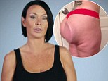 'The whole world has seen my butt': Woman who can FLIP her implants due to botched surgery opens up about the horrific video that made her famous