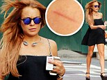 The big cover up! Lindsay Lohan sports a fake tan as her legs are STILL cut and bruised... after blaming the abrasions on a bike ride 'gone wrong'