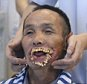 """Mandatory Credit: Photo by HAP/Quirky China News/REX (3941038a)    Man left with disfigured mouth after wolf attack to receive corrective surgery, Datang village, Guizhou Province, China - 04 Jul 2014  A man whose mouth was left severely distorted after being bitten by a wolf as a child is to finally receive corrective surgery 56 years later.     Wu Xiuyou, 65, from Datang village in southwest China's mountainous Guizhou Province, was attacked by a wolf when he was 11.     The animal effectively ripped off his mouth and he was left disfigured and only able to eat liquid food.    Due to his appearance he never went to school, never got married, never got a job and lives by himself.     Surgeon Doctor Chen Fei, who will carry out the corrective procedure, said: """"The patient's mouth is all missing, the jaws are distorted. It'll be the most challenging surgery I've ever done in the past 15 years.""""     Doctor Chen said the hospital has contacted experts in Beijing, Chengdu and Leshan askin"""