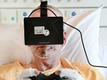 epa04346280 A patient of the burn center of Martini Hospital in Groningen, The Netherlands, 08 August 2014, plays a video game using virtual reality glasses during the treatment of his wounds. Tests show that the pain is much better endurable while being distracted.  EPA/PIROSCHKA VAN DE WOUW