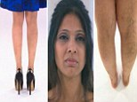 'I've got so many varicose veins, I can't bear to wear skirts'