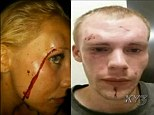Meredith Cole and her boyfriend Alex Vessey were beaten up by six men after the group tried to sexually assault her outside a Springfield, Missouri club last month