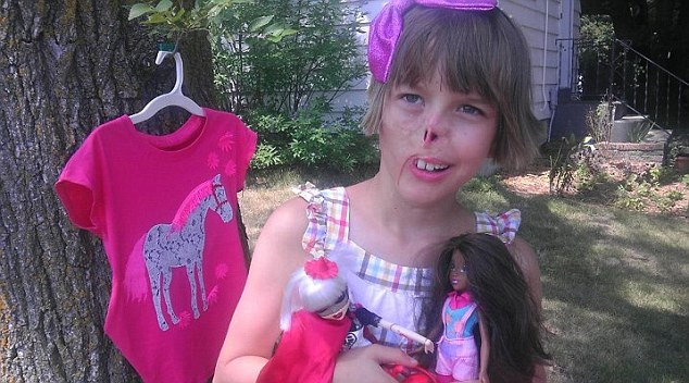 Life-changing: Sharon and Tim Ponce were watching the 11 o'clock news when they learned their great-niece Charlotte had been mauled by a pet raccoon