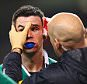 DUBLIN, IRELAND - FEBRUARY 14:  Jonathan Sexton of Ireland is given treatment for a cut to his eye during the RBS Six Nations match between Ireland and France at Aviva Stadium on February 14, 2015 in Dublin, Ireland.  (Photo by Michael Steele/Getty Images)