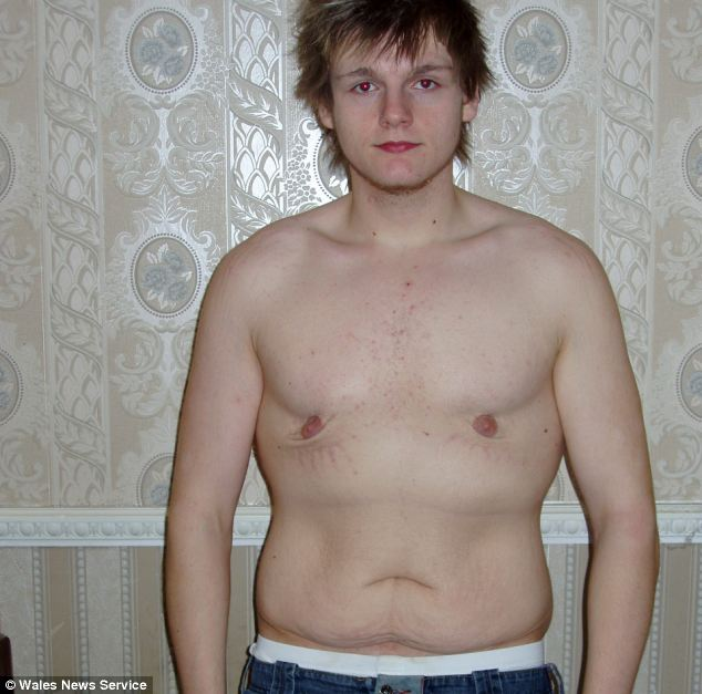 When he was 19 Mr Hewitt had surgery to remove his excess folds of skin. He is pictured after the operation