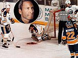 Buffalo goalie Clint Malarchuk suffers the most severe injury in the NHL when his jugular vein was severed 20 years ago. He survived the accident but suffered deep emotional wounds that he did not address until recently. ( Harry Scull Jr., The Buffalo News )