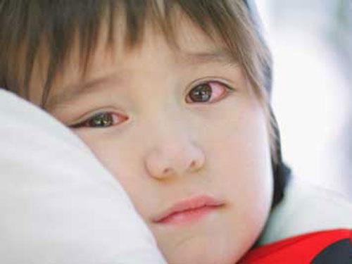 3 loại bệnh về mắt nguy hiểm ở trẻ em và các bệnh thường gặp về mắt ở trẻ nhỏ-2