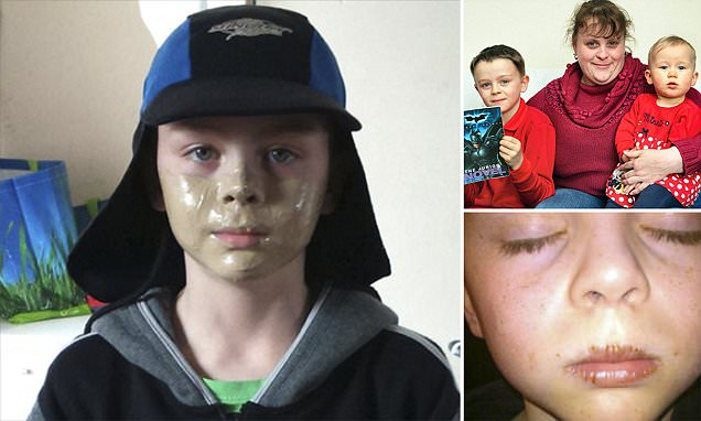 Salford schoolboy with rare illness is subjected to racist abuse over brown suncream