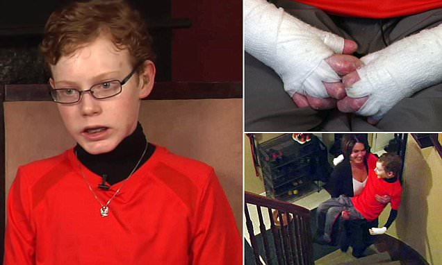 Boy, 14, with fragile skin disorder Epidermolysis Bullosa speaks about battling condition