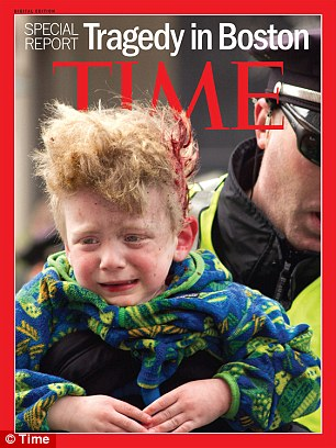 Steve Woolfenden's son Leo, who was three when he was injured in the Boston bombing, was pictured on the cover of Time Magazine