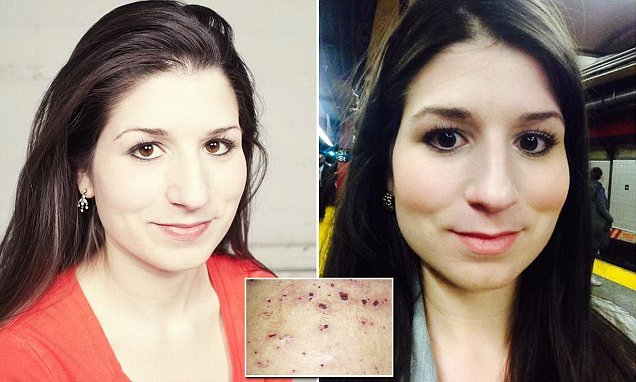 Jenna Marotta suffering from dermatillomania spends HOURS picking at her pores