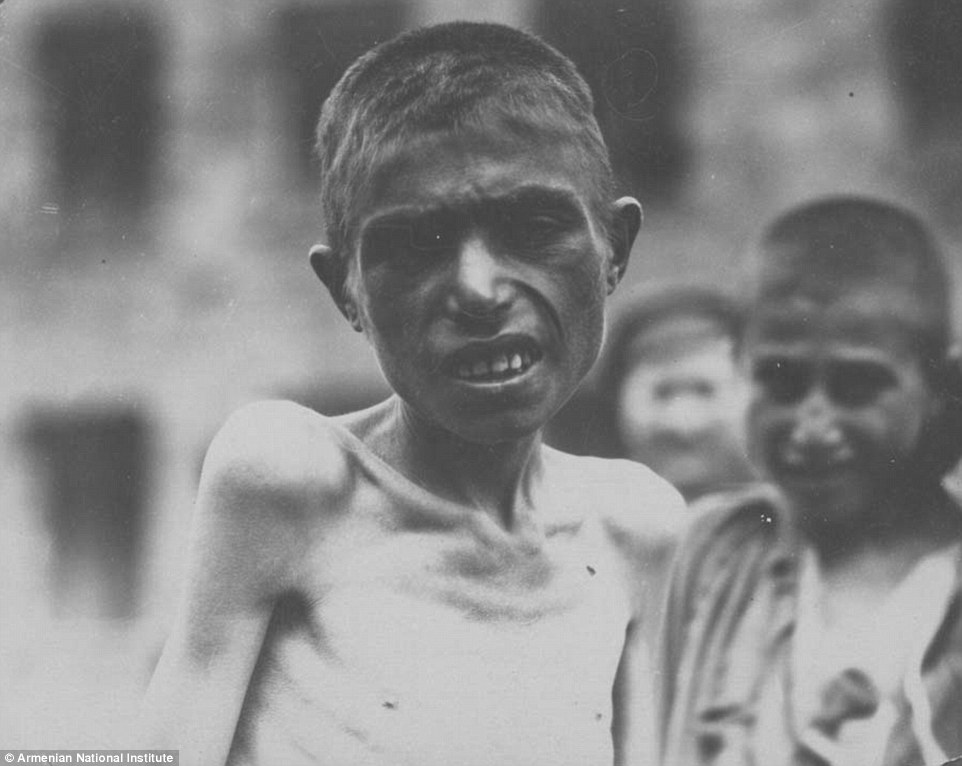 An image of a starving Armenian orphan taken by John Elder. More than 150,000 Armenian children were left parentless by the end of 1918