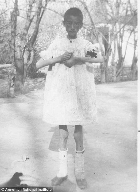 A painfully thin orphan of the genocide taken by Elder in Erivan, now the capital of Armenia, in 1918