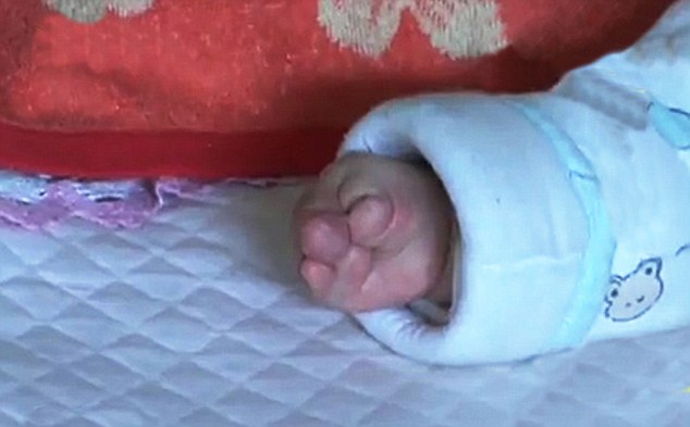 Little Mengyu's hands are severely deformed and doctors have recommended corrective surgery