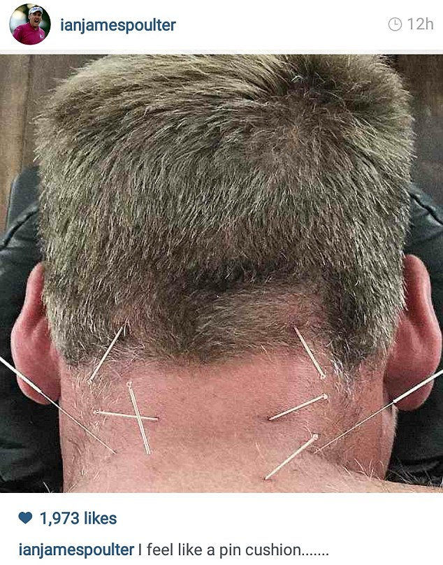Ian Poulter shared an Instagram picture of what looked like a painful acupuncture session