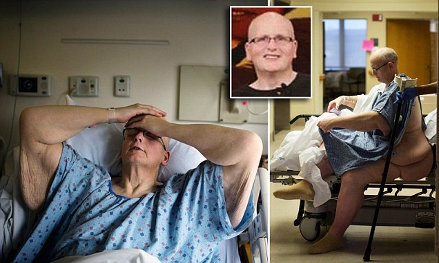Former world's fattest man Paul Mason goes under the knife in US to remove excess skin