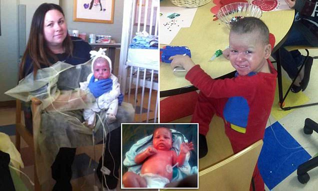 Mother reported for child abuse over son's rare skin disease Netherton's syndrome
