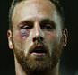 David Meyler of Hull City with an injury to below his eye