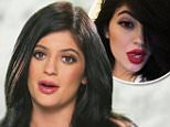 "KYLIE JENNER ADMITS TO DOING WHAT TO HER LIPS?!\nWill the ""Kardashians"" star come clean about how she gets her pout so luscious and beautiful? Listen to what she says."