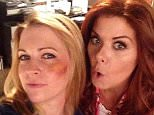 Did @therealdebramessing give me this shiner? Find out now on @nbclaura #mysteriesoflaura on @NBC