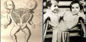 Twins experiment by Nazi doctors