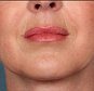 KYBELLA.jpg..Photo Release -- KYTHERA Biopharmaceuticals Announces FDA Approval of KYBELLA(TM) (also known as ATX-101) -- First and Only Submental Contouring Injectable Drug..Issued on April 29, 2015 15:58