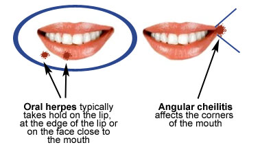 Angular Cheilitis and Herpes2 What is the difference between Angular Cheilitis and Herpes?
