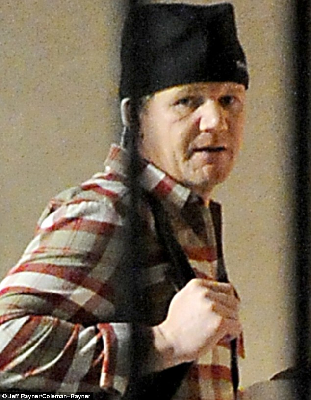 Covering it up: Gordon Ramsay emerges from the Los Angeles clinic where he had the £30,000 treatment this week wearing a surgical cap to hide his new locks