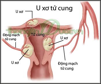 Cách điều trị bệnh u xơ cổ tử cung bằng đông y-hình 1
