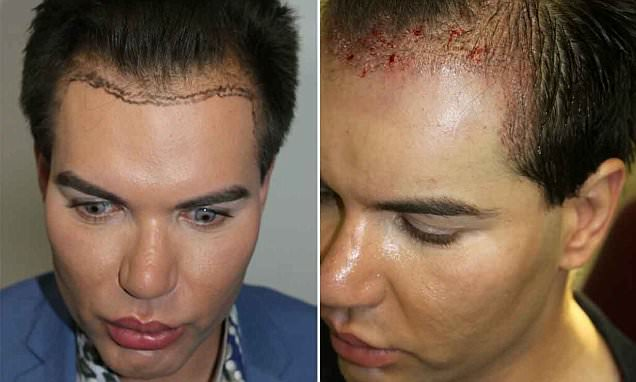 Surgery addict who's spent 10 years turning himself into a real-life Ken doll undergoes a