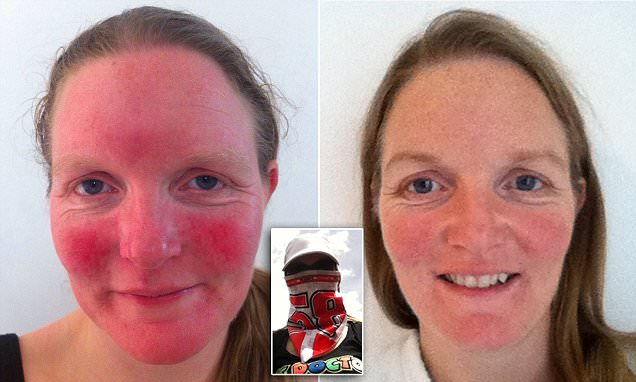 Carrie Smith's severe rosacea is cured by a cream containing CAPERS