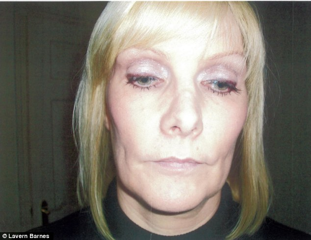 Broken and scarred: Lavern's nose after the bad surgery in 2009 which cost her £3,400 and left her with a broken nose